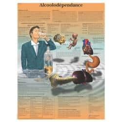 Alcoolodependence